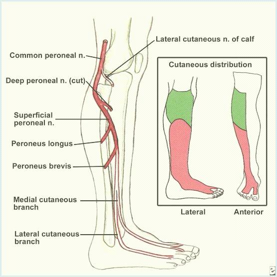 Conoce todo sobre el nervio peroneo común y sus lesiones