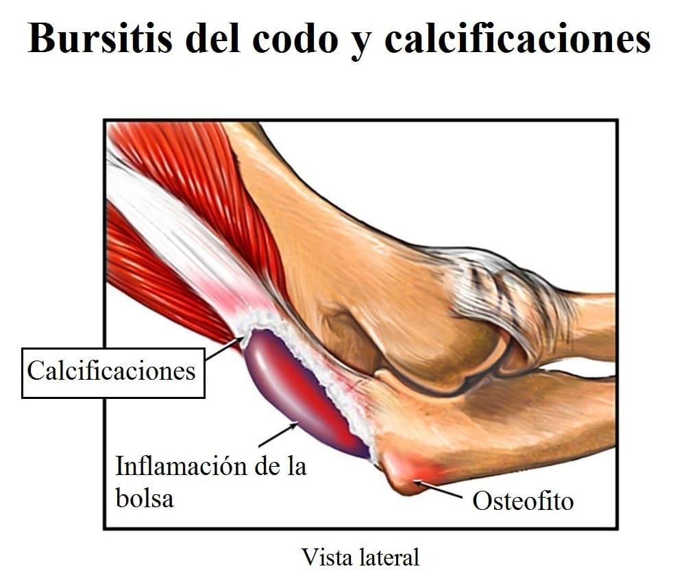 Articulación del codo: anatomía, tipo, dolor, ligamentos, músculos y más
