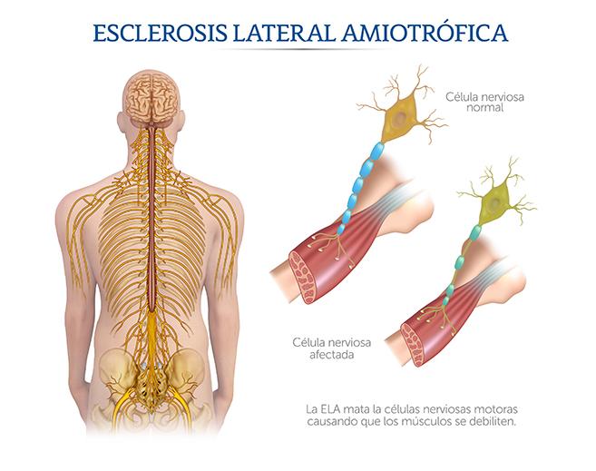 enfermedades del sistema nervioso periférico y mucho mas
