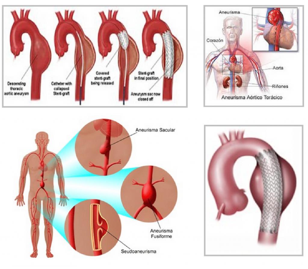 Aneurisma de la aorta: ¿qué es? Síntomas, operación y más