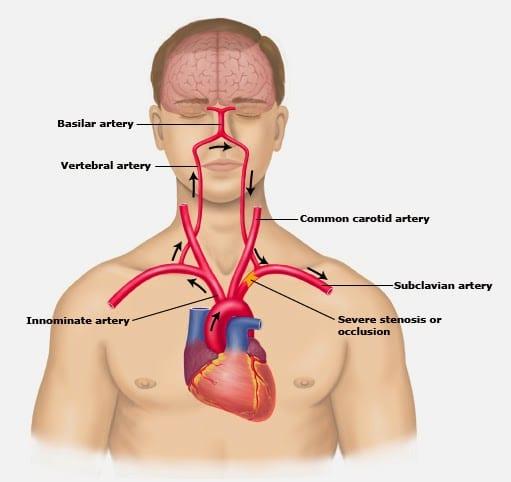 Arteria subclavia: anatomía, función, ramas, aberrante y más