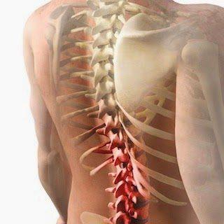 Conoce las enfermedades de la médula espinal y sus síntomas.