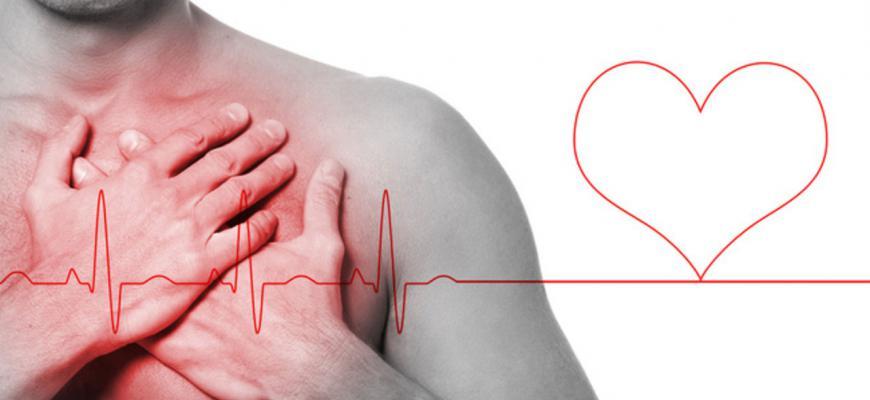 Infarto al miocardio: ¿Qué es?, signos, síntomas,tipos y mucho más
