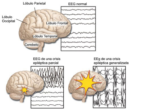 Lóbulo occipital: ¿Qué es? Anatomía, función, áreas, ubicación y más