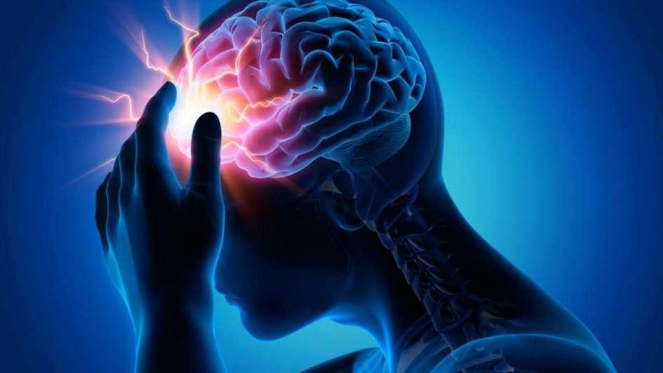 Aneurisma Cerebral: ¿Qué es? Tipos, síntomas, causas, secuelas, y mas