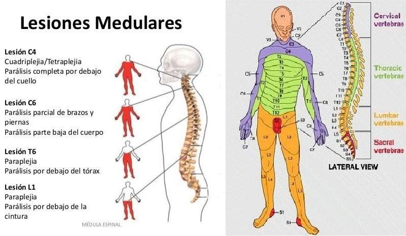 Infarto: ¿qué es? Síntomas, signos, prevención, tratamiento y mucho mas