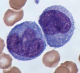 Monocitos bajos: ¿qué significan? Causas, diferencia con los altos y más