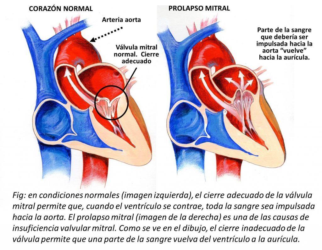 Válvula Mitral: ¿Qué es? Anatomía, función, operación, síntomas y más