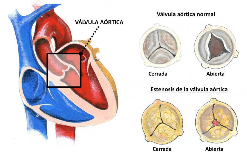 Válvulas cardíacas: ¿qué son? Anatomía, función, tipo y mucho más