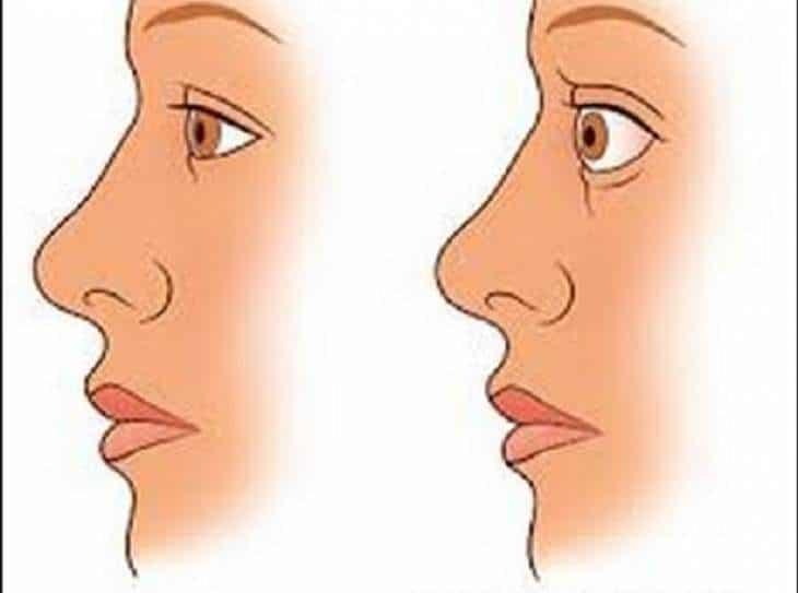 causas de tiroides