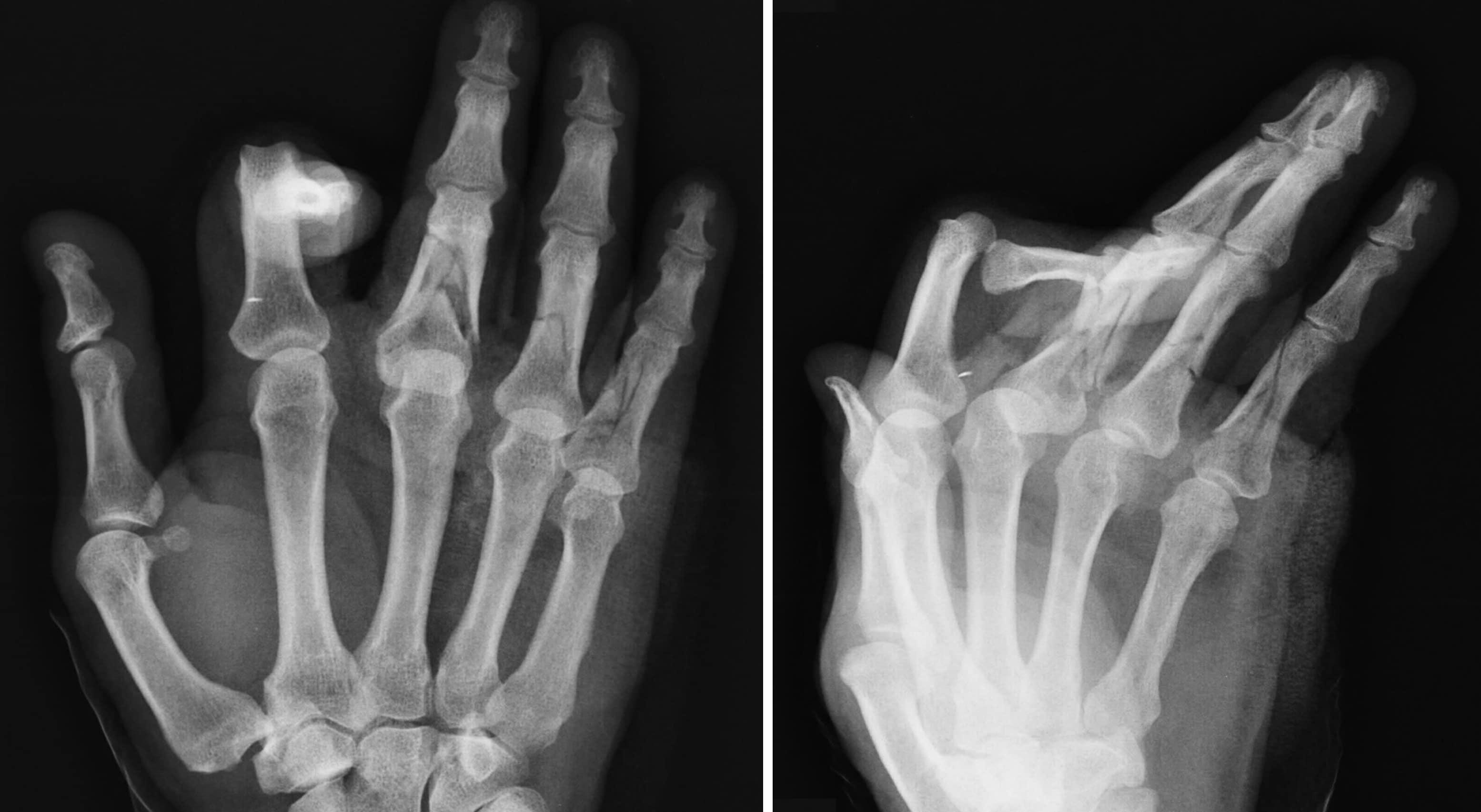 Huesos de la mano: ¿Cuántos son? Anatomía, funciones, partes y más