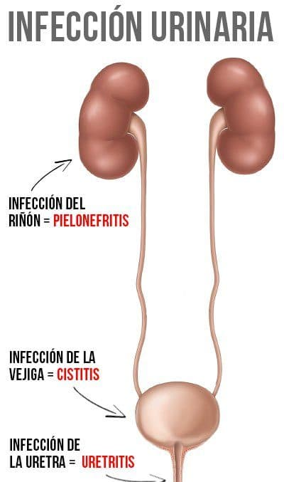 sintomas de infección en los riñones