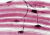 Placa neuromuscular: definición, función, partes y más