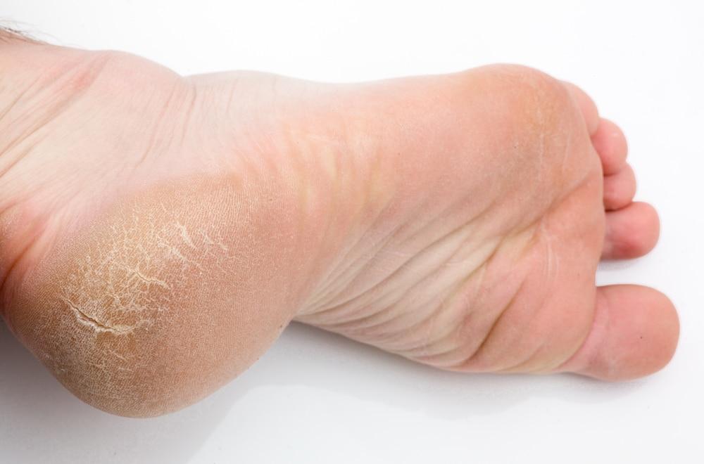 Talón: anatomía, dolor, lesiones, daños y mucho más