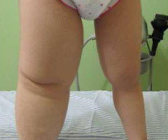 Linfedema en las piernas: ¿cómo tratarlo? Tratamiento natural y más