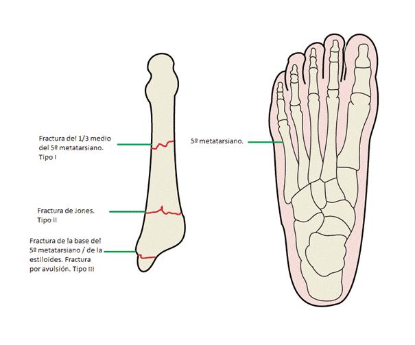 Metatarsos del pie: dolor, operación, fractura, inflamación y más