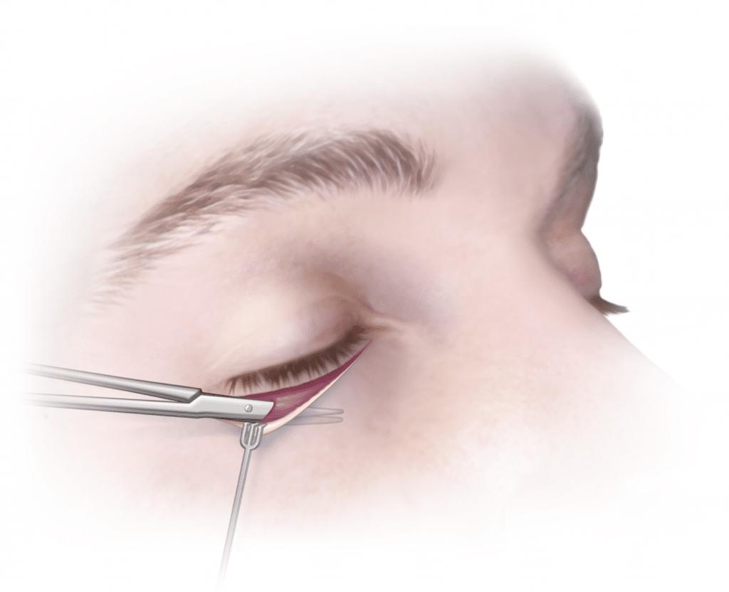 Párpado: Anatomía, función, importancia, y mucho más
