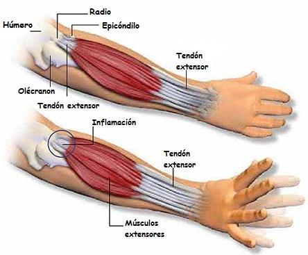 Qué son los Músculos extensores? Descúbrelo aquí