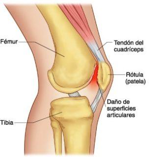Huesos de la Rodilla: ¿Cómo son? Anatomía, Dolor, Lesiones, Infección y mucho más
