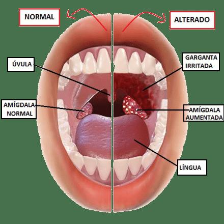 Amígdalas: ¿Qué son? Anatomía, función, fisiología y mucho más