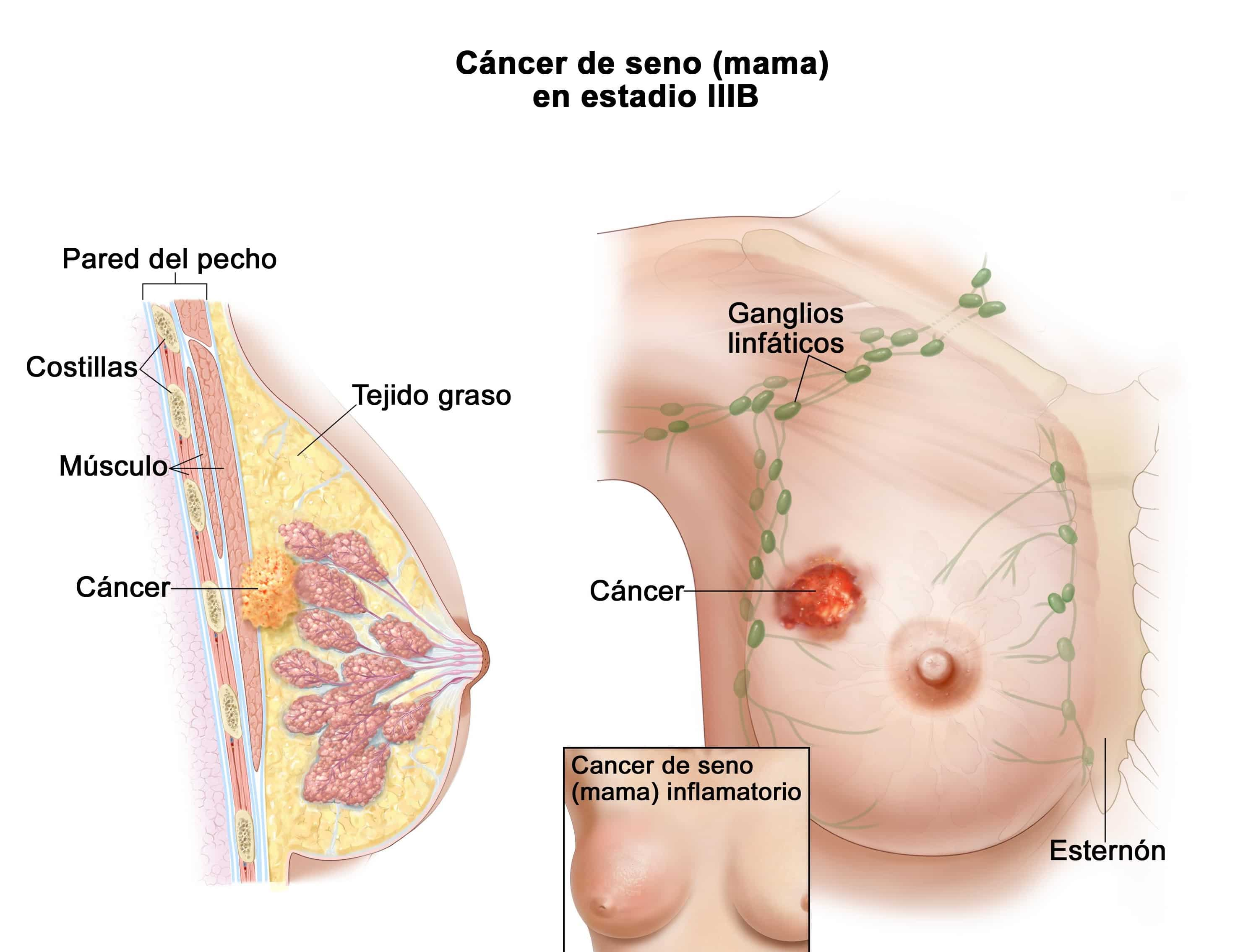 Ganglios linfáticos: ¿Qué son? Anatomía, función, estructura y mucho más