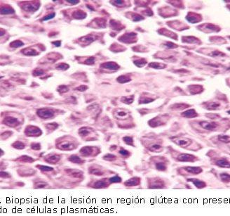 Plasmocitoma: definición, síntomas, tratamiento y mucho más