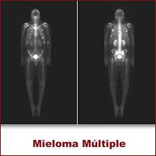 Aprende todo sobre el Tratamiento del mieloma múltiple
