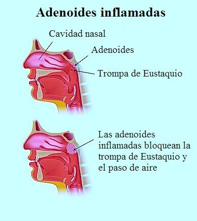 amígdalas faringeas