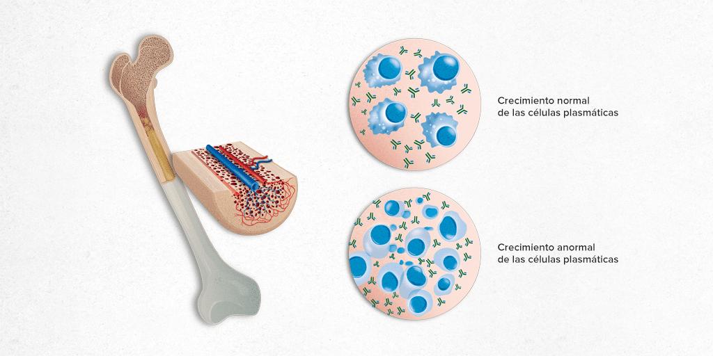 diagnóstico del mieloma multiple
