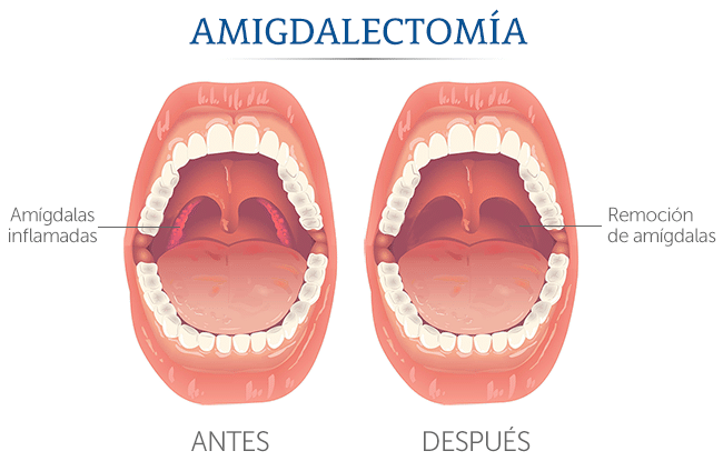 Aprende todo sobre la Función de las amígdalas Aprende todo sobre la ...