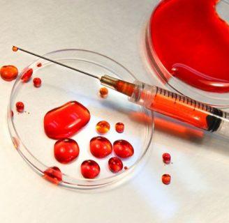 ¿La leucemia es contagiosa? Descúbrelo aquí