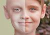 Leucemia Mieloide: ¿Qué es? Síntomas, tratamiento, diagnóstico y mucho más