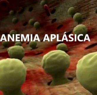 Anemia Aplásica: ¿qué es? Causas, Síntomas, Tratamiento y más