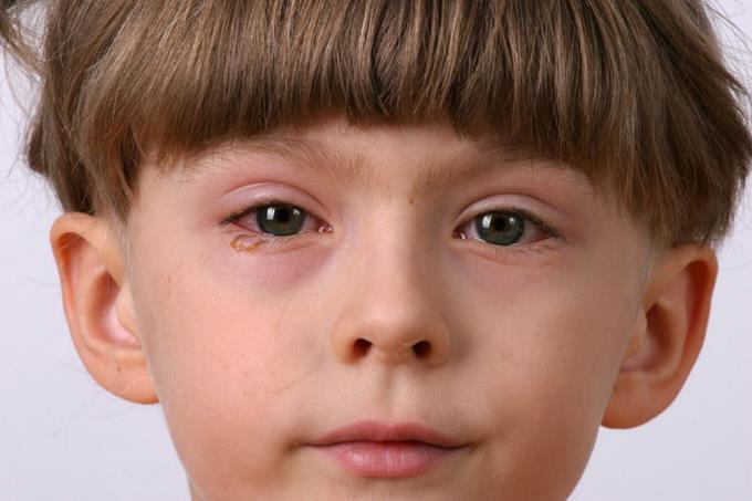 herpes ocular