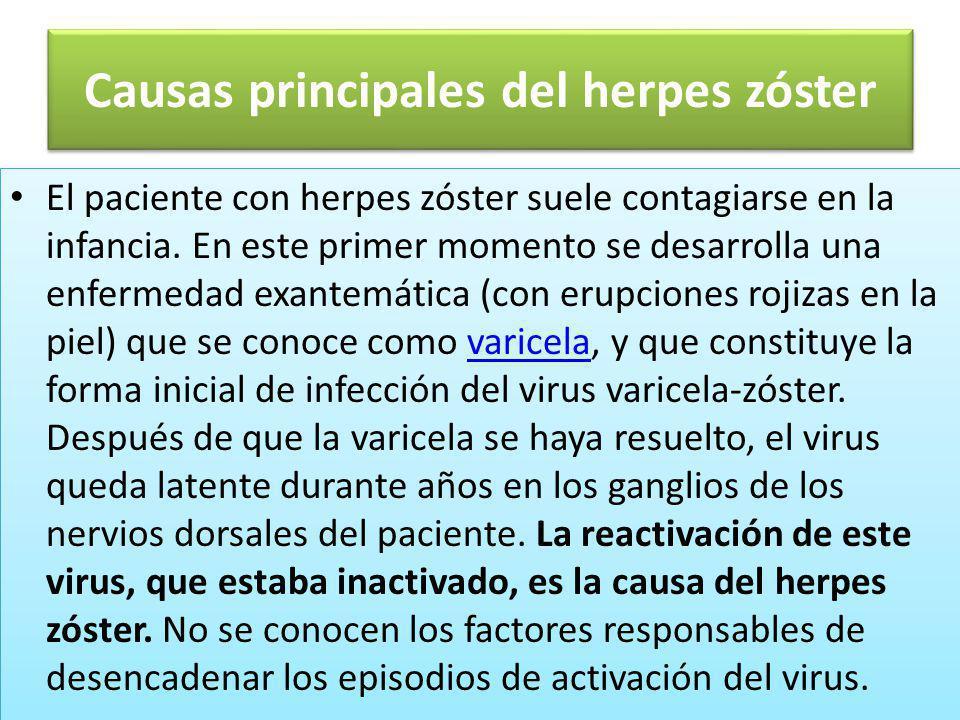 Contagio del herpes zóster-1