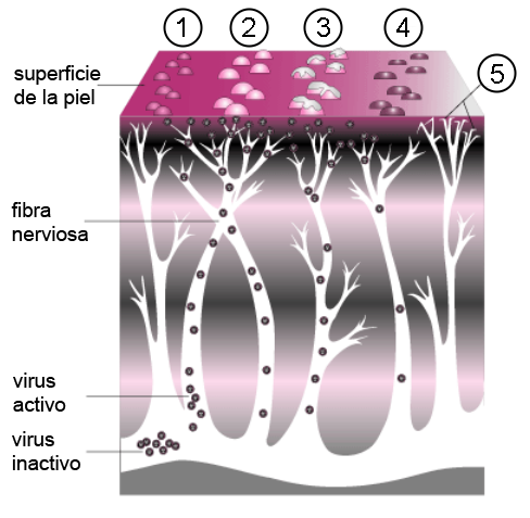 herpes en la piel