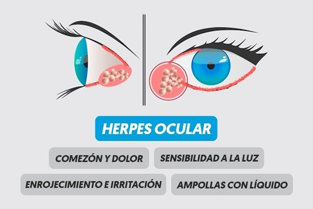 El Herpes Zóster Oftálmico