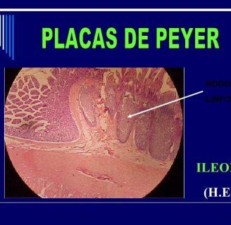 Placas de Peyer: función, enfermedad, estructura y más