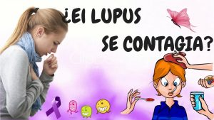 el lupus es contagioso