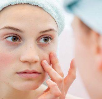 Lupus eritematoso cutáneo: ¿qué es? Síntomas, tratamiento y más