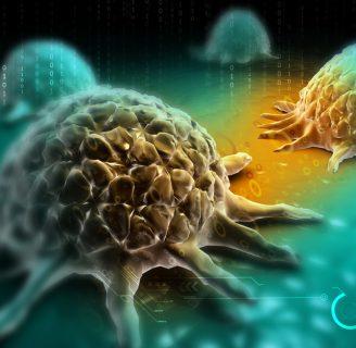 ¿El lupus es cáncer? Descúbrelo aquí y mucho más