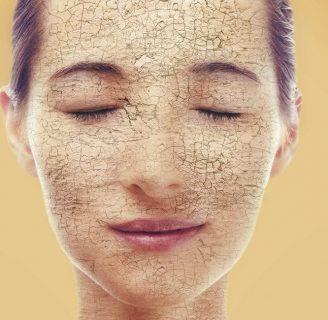 Ictiosis arlequín: ¿qué es? Causas, síntomas, tratamiento y más
