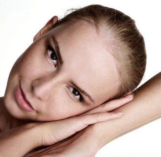Alopecia androgénica femenina: ¿qué es? Causas, síntomas y más