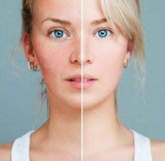 Causas del sarpullido: en la piel, en el cuerpo, en la cara y más