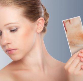 Sarpullido en la Cara: ¿qué es? Causas, Tratamiento y más