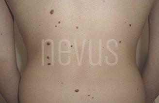 Nevus melanocíticos: ¿qué son? Tratamiento, maligno y más
