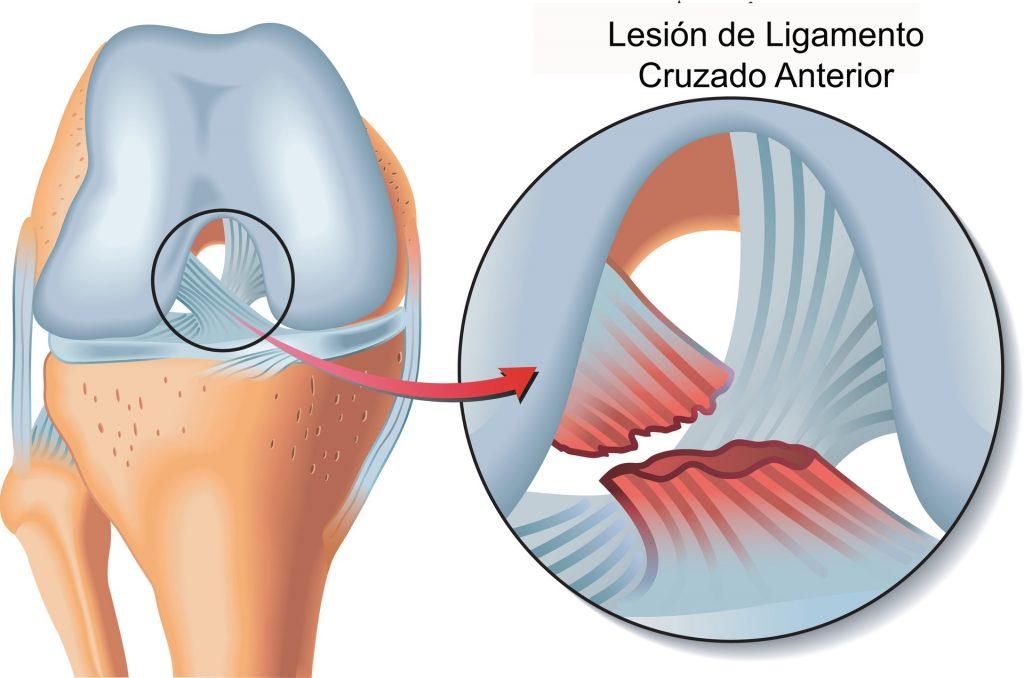 Lesiones de la Rodilla