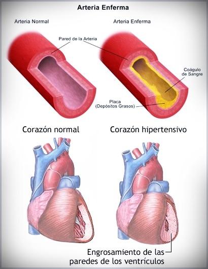 Tipos de Arterias
