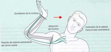Nervio musculocutáneo 6