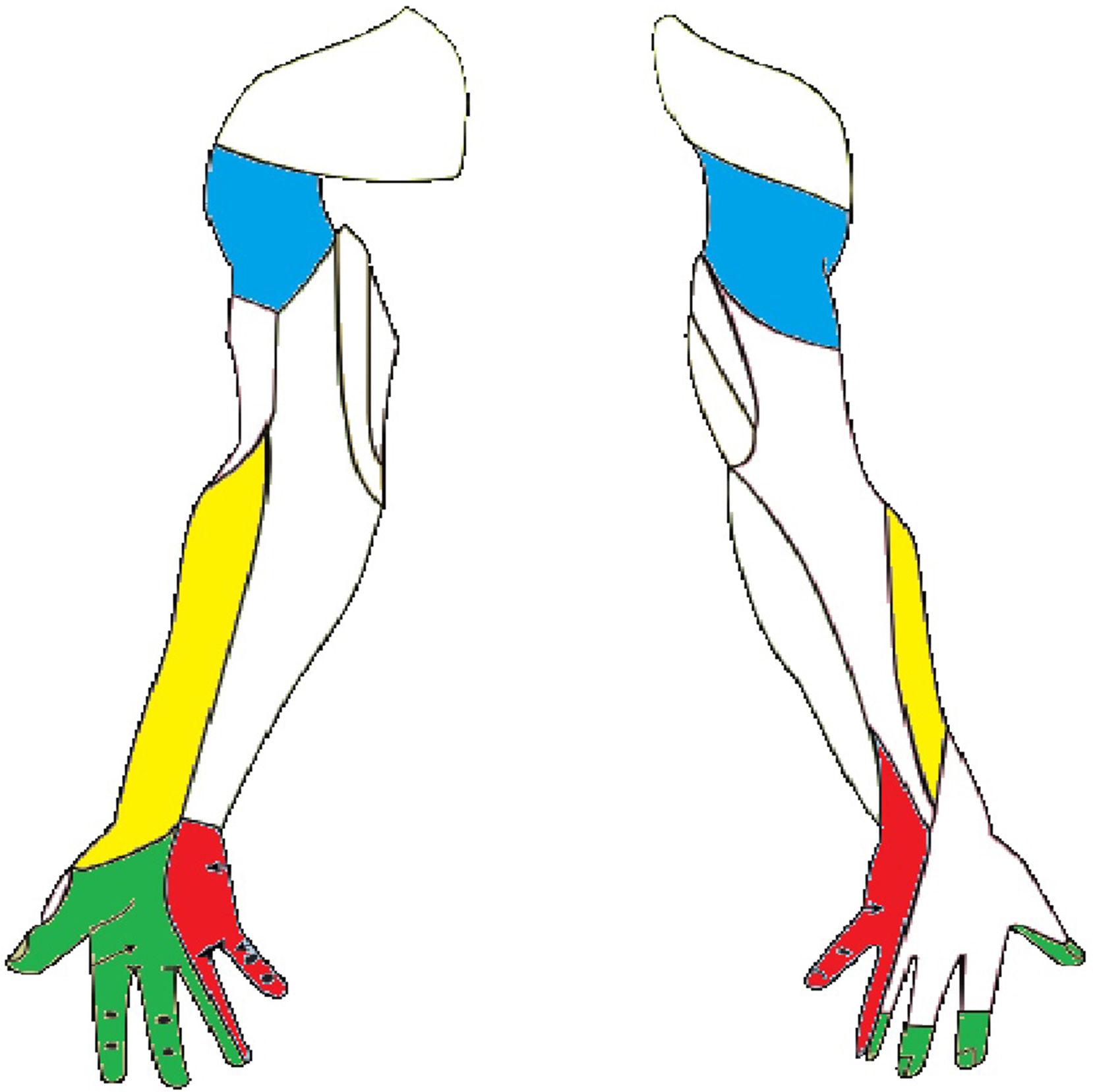 Nervio musculocutáneo 2